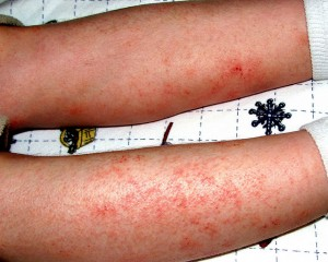 picture : Eczema flare by Care_SMC on Flickr.com