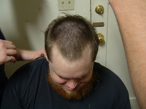 picture : Imitation Male Pattern Baldness by Brian Omura on Flikcr.com