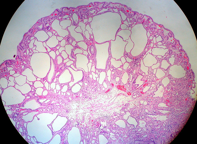 picture :Fundic Gland Polyp, Stomach by Ed Uthman on Flickr.com