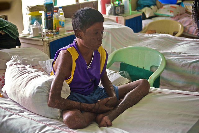 picture : Filipino Boy with Leprosy by moyerphotos on Flikcr.com