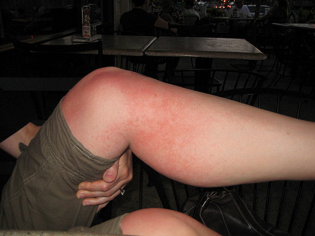 picture : Brutal Heat Rash by summitcheese on Flickr.com