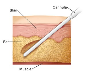 Skin layers showing cannula evacuating fat during liposuction.  SOURCE: 60172A referenced from: http://health.howstuffworks.com/liposuction1.htm