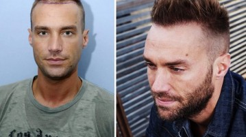 before after hair transplant star
